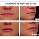Aumento de los labios