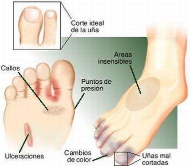 El hongo sobre las uñas de los pies el tratamiento verteré 4 cucharas al litro del agua