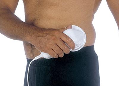 Celulitis en el hombre