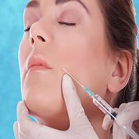 Implantes de relleno faciales