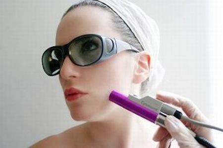 Tratamiento laser para la Piel