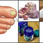 Remedios caseros para eliminar Hongos