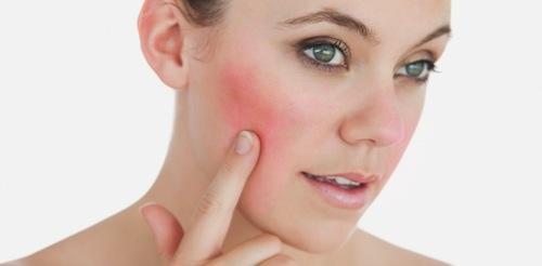La Rosacea enfermedad de la piel